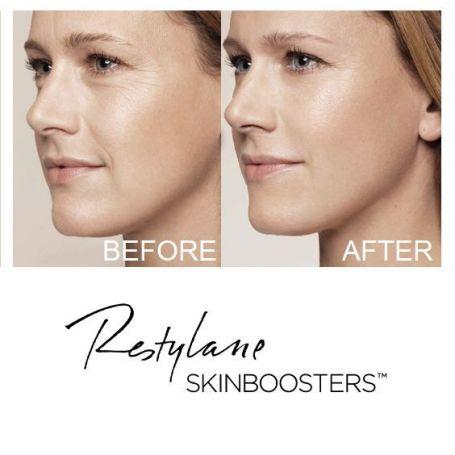 Restylane Vital Skinbooster 1x1ml Galderma Qmed 2